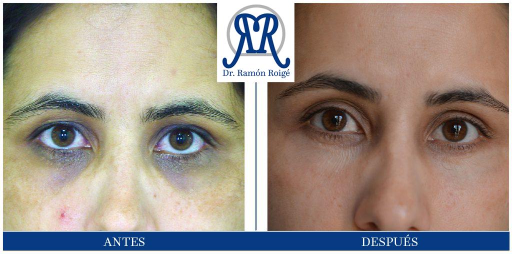 Molding Contour: tratamiento para las ojeras oscuras