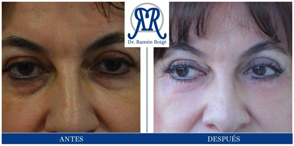 Molding Contour, tratamiento para la zona del contorno de los ojos