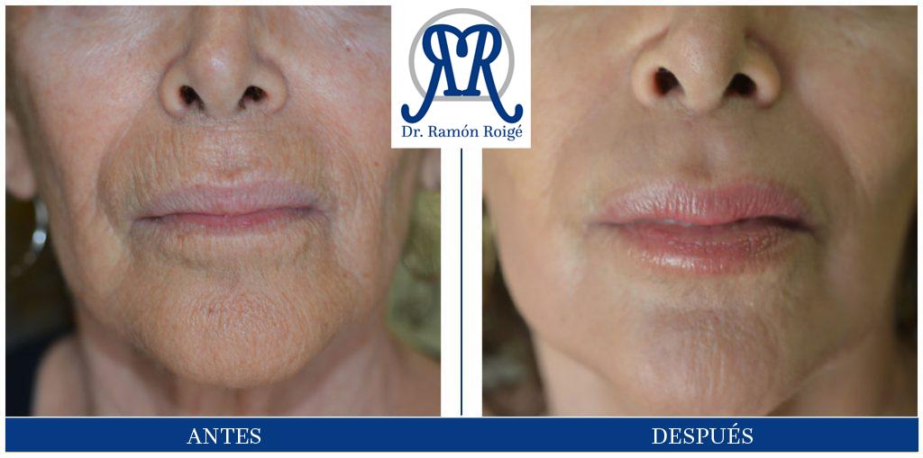 Molding Lip, antiarrugas perilabiales