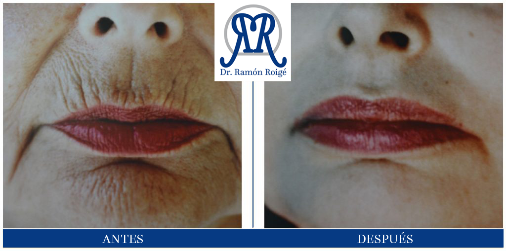 Molding Lip