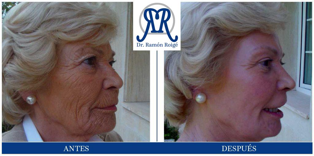 Molding Mask, es el tratamiento antiarrugas por excelencia.