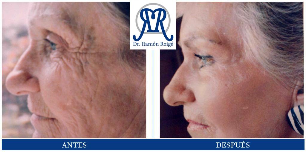 Molding mask, tratamiento antienvejecimiento