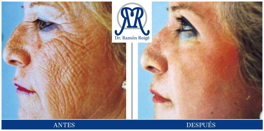Molding Mask, tratamiento antiarrugas