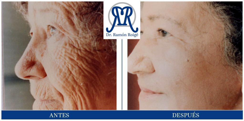 El Molding Mask, tratamiento antiarrugas