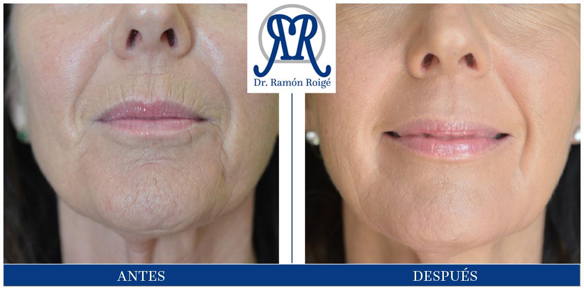 molding lip tratamiento contra las arrugas perilabiales sin cirugía y ambulatorio