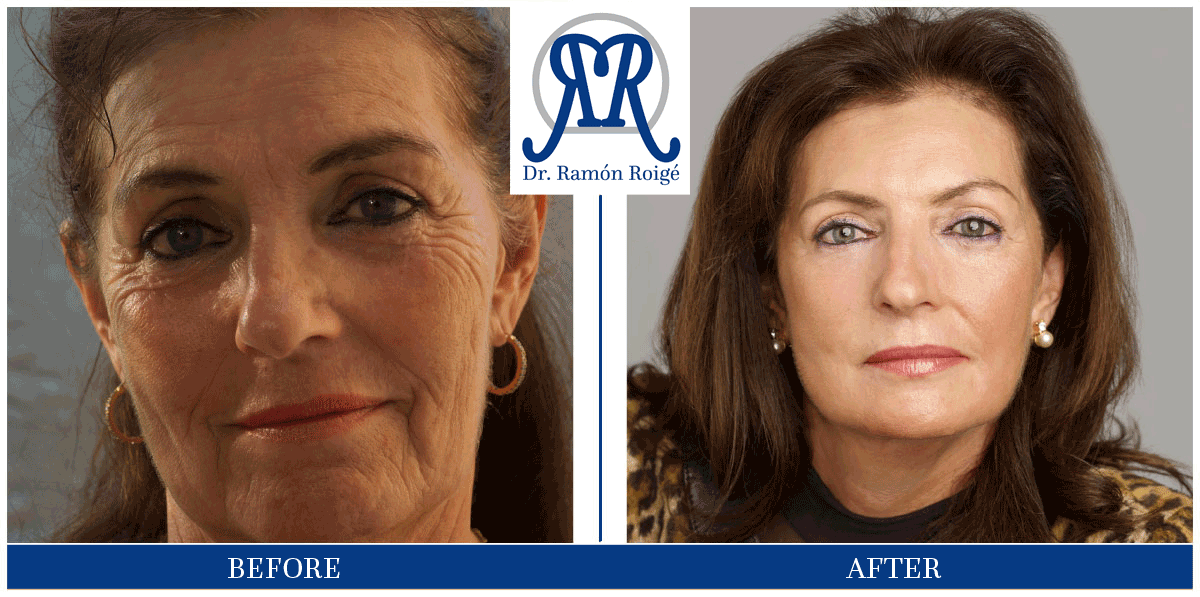Molding Mask treatment without surgery: for wrinkles
