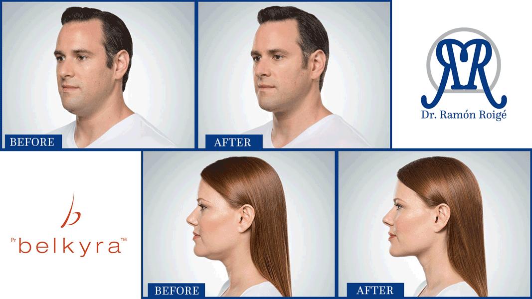 remove the fat under the chin