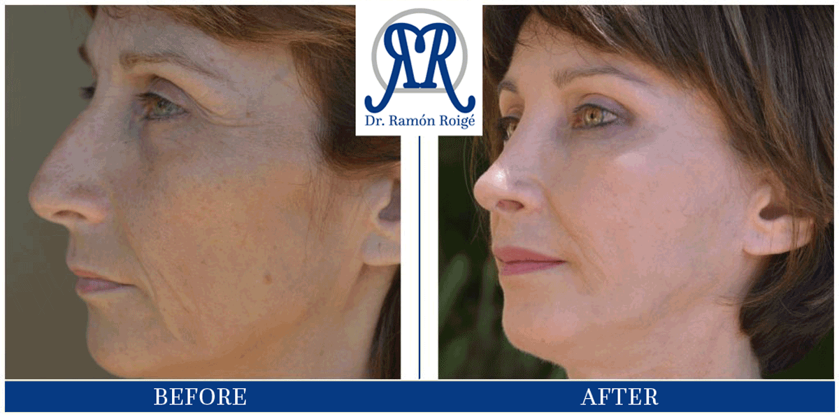Molding Contour anti-wrinkle treatment: lower eyelid