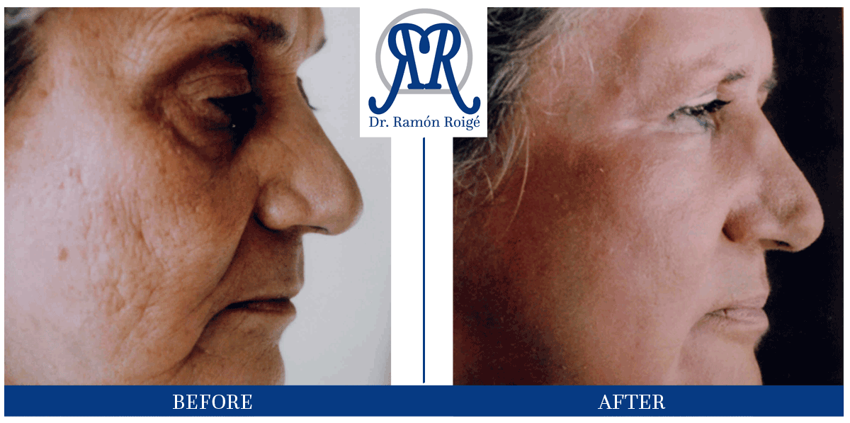 Molding Mask treatment without surgery: acne scars