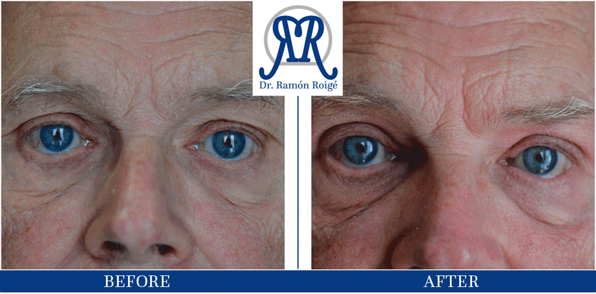 treatment against wrinkles in upper eyelid
