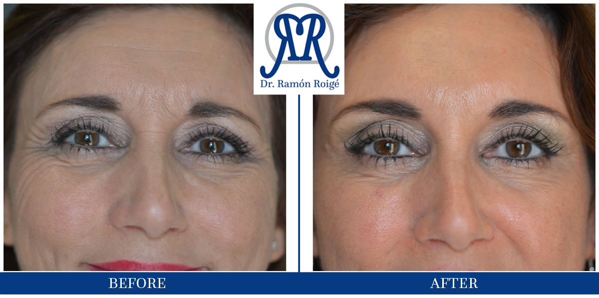 Treatment with botulinum toxin