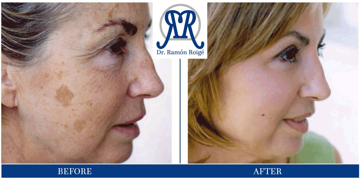 Treatment against melasma with Molding Mask