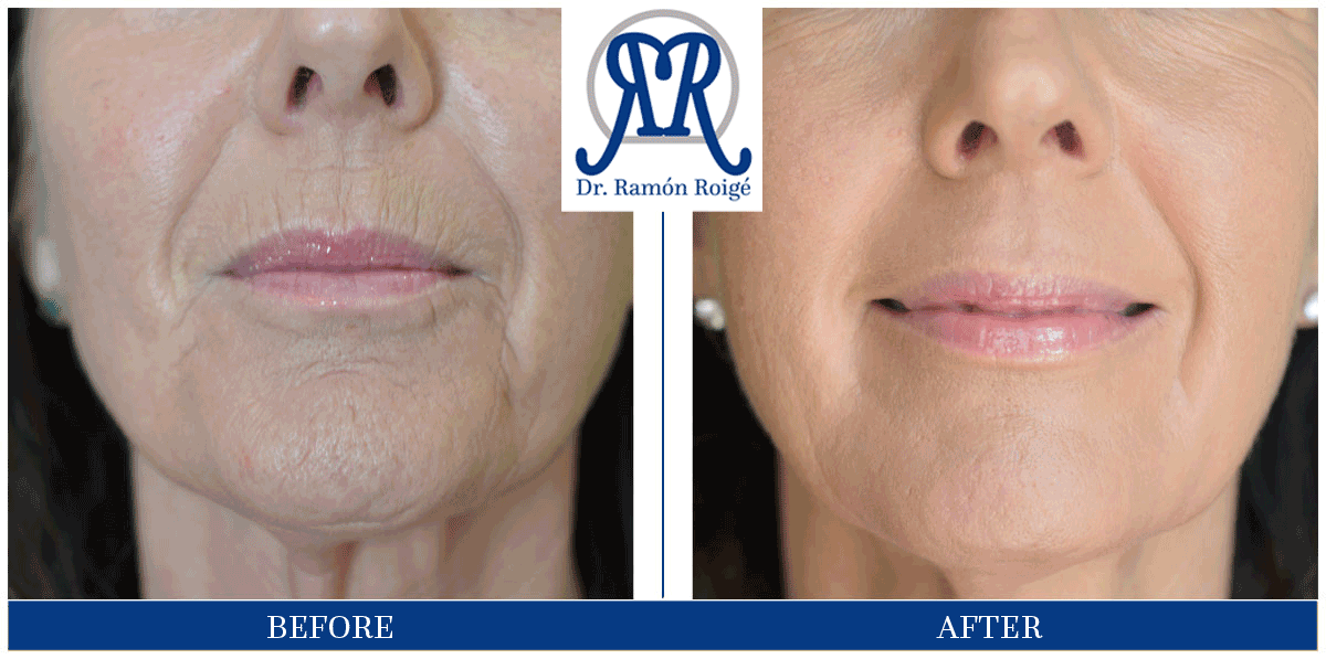 Eliminate lip wrinkles without surgery